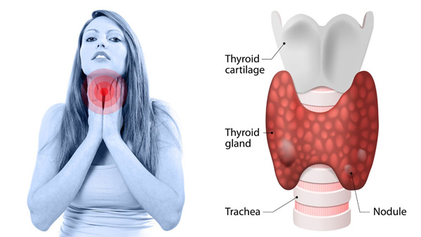 Best Thyroid Removal Surgery Hospital Thyroid Cancer Treatment