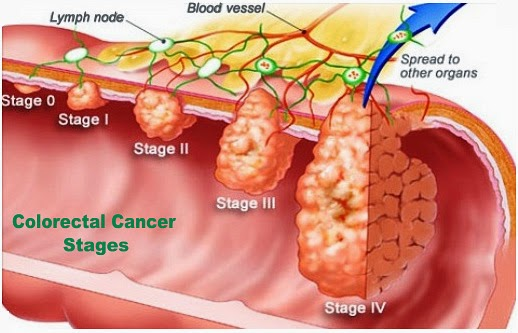 Colorectal Cancer Treatment Southlake Texas Southlake General Surgery