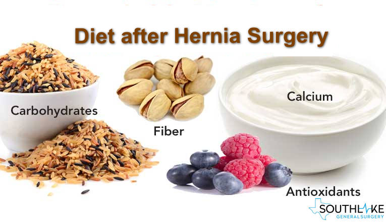 Diet After Hernia Surgery Southlake General Surgery