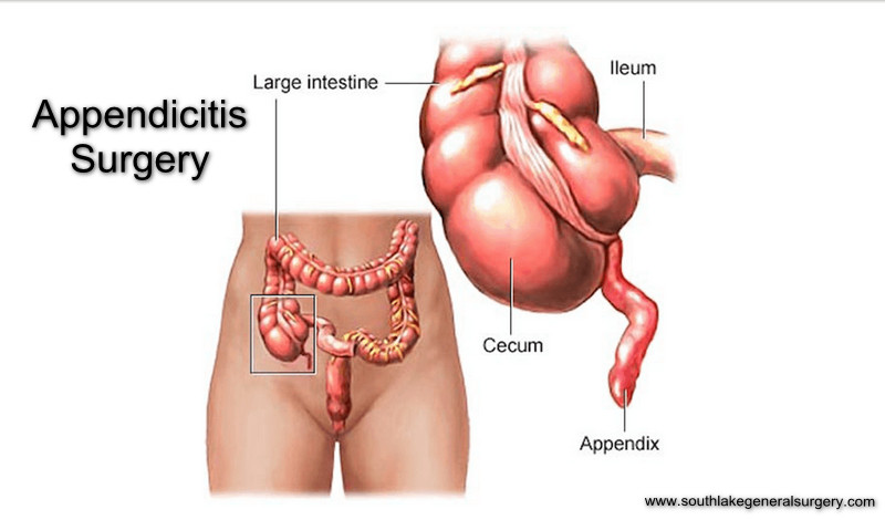 Appendicitis Surgery And Recovery Time Southlake General Surgery