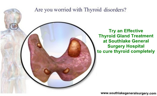 Thyroid Operation Recovery Time Archives Southlake General Surgery