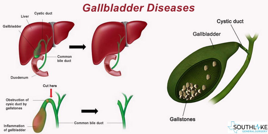 Gallbladder Diseases- Overview, Types and Diagnosis- Southlake Texas
